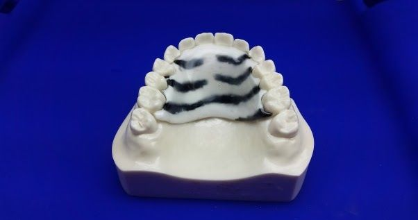 Different Methods for Cleaning Dental Retainers at Home-1.