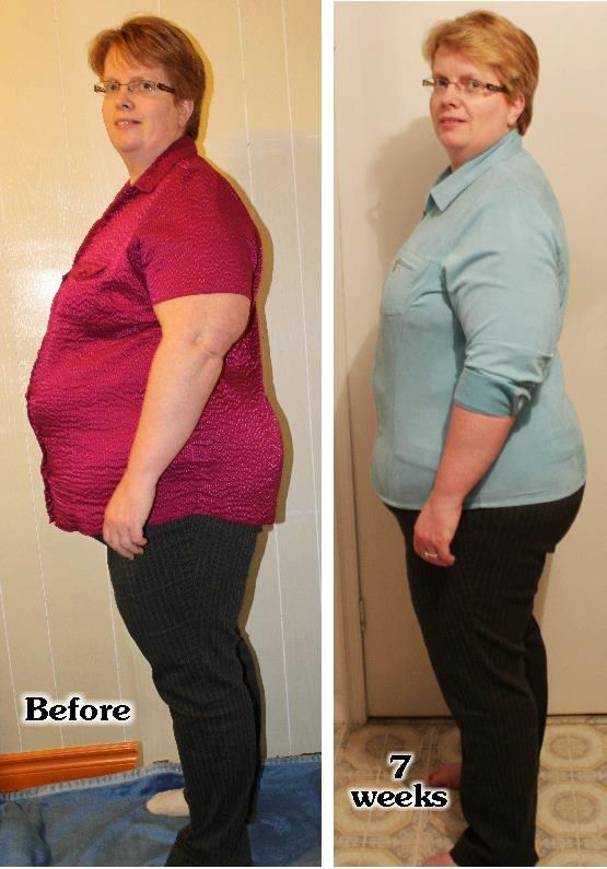 Donna 7 Weeks Later Www Fitquox Com Weight Loss Before