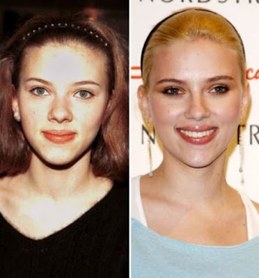 Scarlett Johansson.. ha! Kinda looks like she had a nose job. For the better :-)