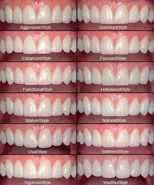 Porcelain Veneers Dental Veneers Dental Cosmetics Cosmetic Teeth