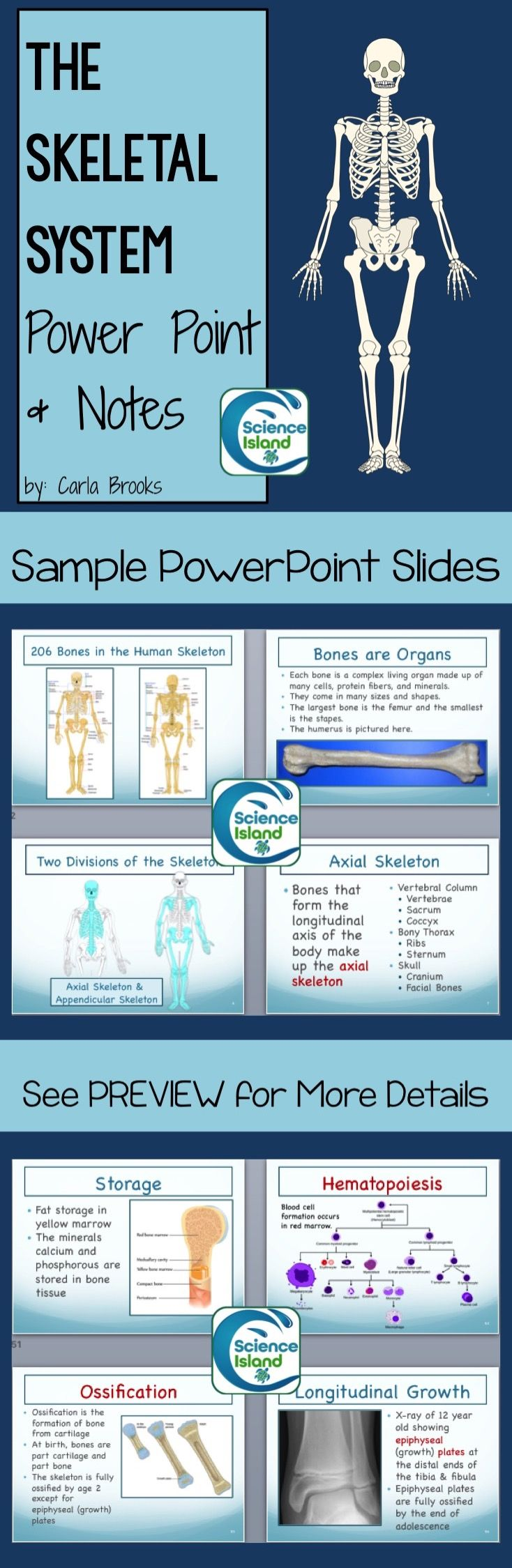 This Skeletal System PowerPoint presentation, with over 65 slides full of high quality photographs and illustrations, conveys essential vocabulary and concepts of the human skeletal system. Designed for a high school or introductory college level anatomy and physiology course, this presentation is intended as a supplement to any A & P textbook, but it is comprehensive enough to be used alone.