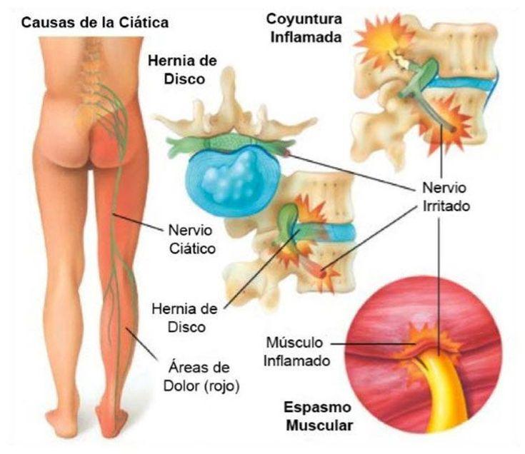 Para un quiropráctico, una de las afecciones más comunes que ve en su consulta es la ciática. Este dolor de espalda que llega hasta la pierna es muy común en nuestra sociedad. ¿Qué causa exactamente la ciática y cómo podemos deshacernos de ella? Hay que empezar por comprender el significado de la palabra ciática. Lo que su dolor de ciática realmente significa La ciática es un término que describe los síntomas de dolor que se originan en la zona lumbar y se extienden a través de la