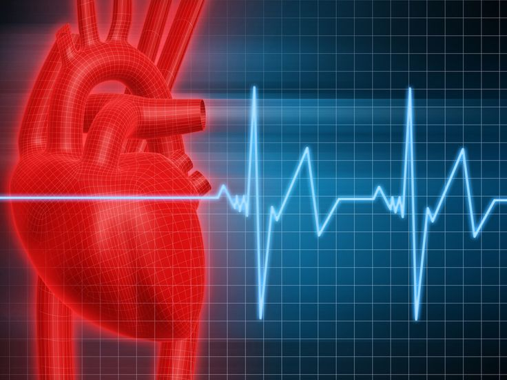 Link between Psoriatic Arthritis and Cardiovascular Disease