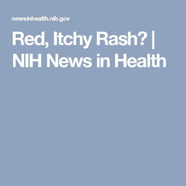 Red, Itchy Rash? | NIH News in Health