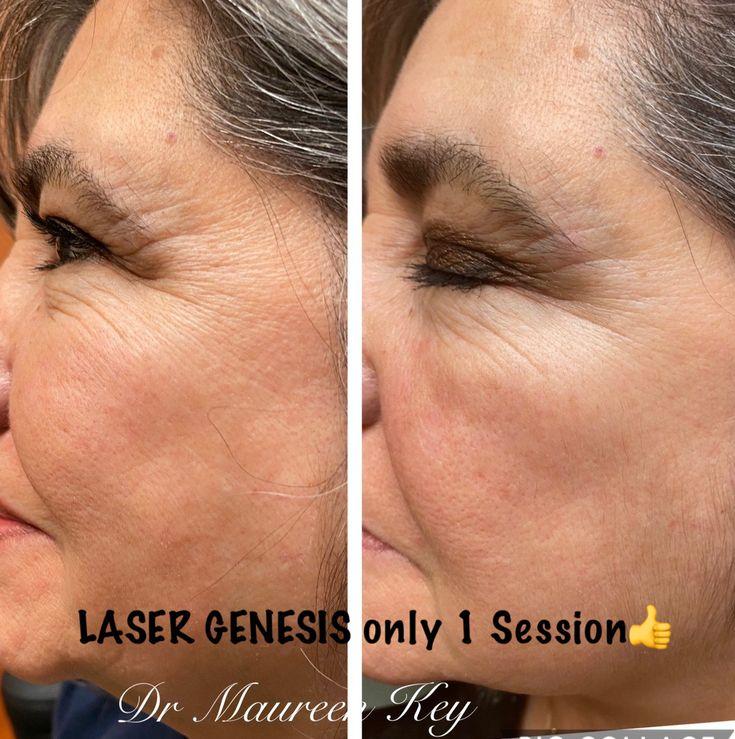 Park Art My WordPress Blog_Laser Treatment For Face Hair Removal Near Me