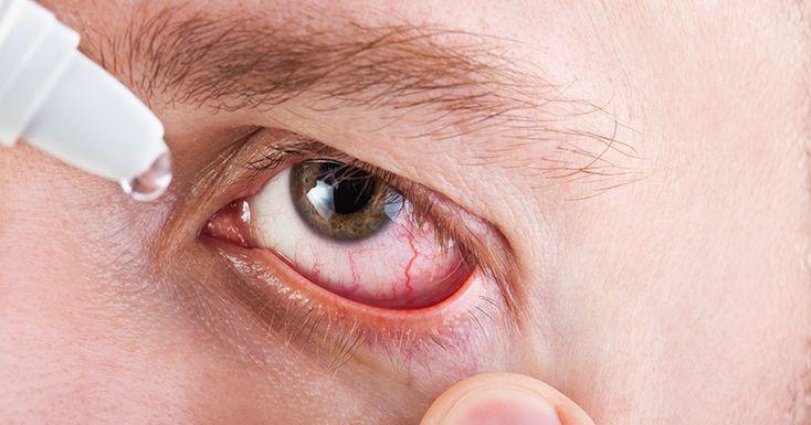 Was hilft gegen trockene Augen? - https://www.gesundheits-magazin.net/6888-was-hilft-gegen-trockene-augen.html