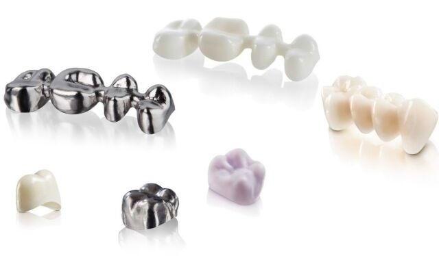 La ora actuală în stomatologie există mai multe tipuri de coroane, dar care sunt diferențele, avantajele și dezavantajele fiecărui tip de material folosit.