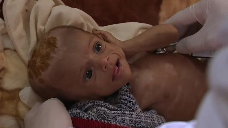 Yemen's war leaves children on the brink of famine