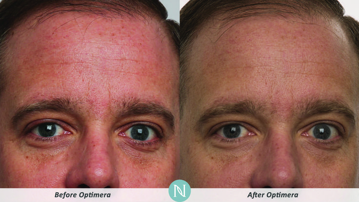 #RealResults from Optimera!