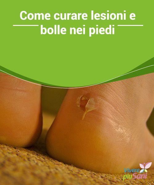 Come #curare lesioni e bolle nei piedi Le #scarpe nuove possono causare #lesioni e bolle ai #piedi. Ecco alcuni rimedi naturali per contrastare il problema