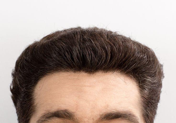 Hairline Density Hair transplant cost, Hair restoration
