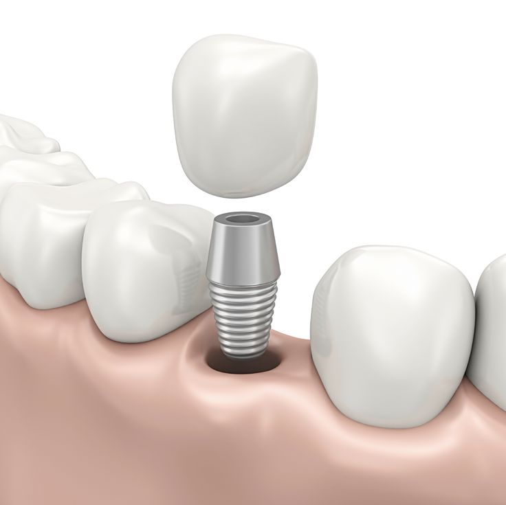 Restore Your Teeth With Dental Implants