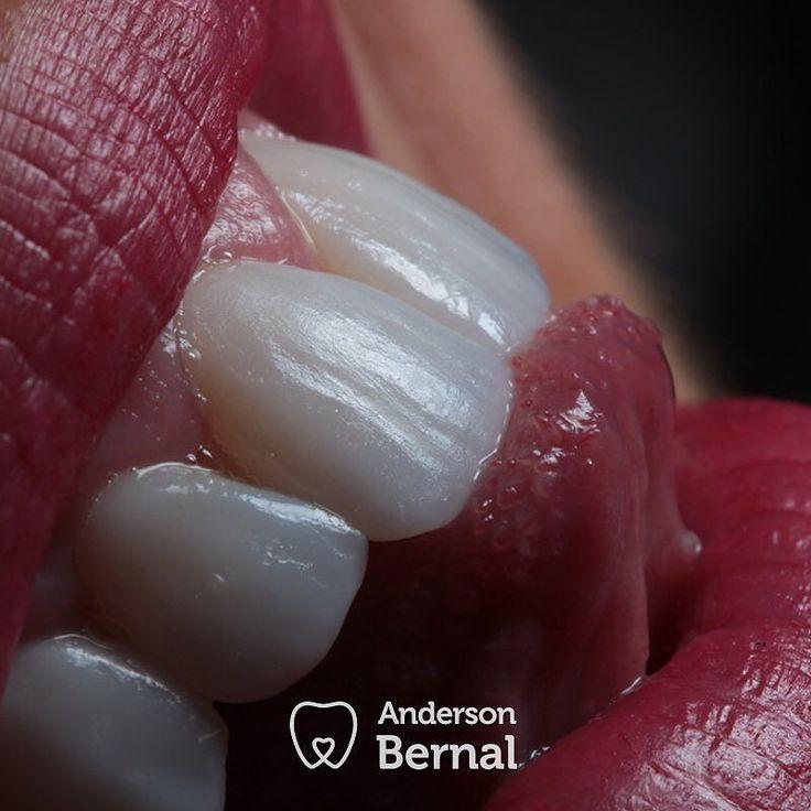 #casosdomeudia: 12 #lentedecontatodigital escaneamento e fresagem 3D... showww!!! 12 horas de trabalho finalizado! #institutobernaldeodontologia #andersonbernalodonto #andersonbernal #dentistadassupermodels #dentistadasestrelas #saopaulo #like #top #brasil #dentista #odontologia #odonto #odontolove #dentistry #institutobernaldeodontologia #juntossomosmais #sorrisocolgate #sorrisobranco #sorrisoperfeito #sorrisobucal #esculturadental #oquetefazsorrir #followme #like4like #instalike…