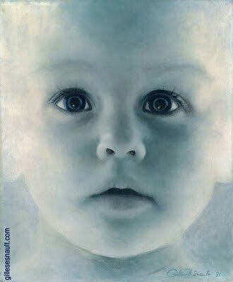 """""""Blue Baby Syndrome""""  The first heart surgery ever done was on a blue baby at Johns Hopkins... There is a great movie about this: """"Something The Lord Made""""!"""