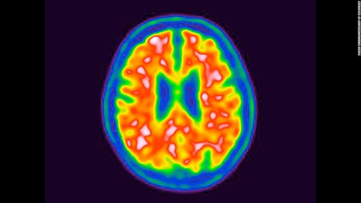 An international team of scientists has developed a blood test detecting toxic proteins linked to Alzheimer's disease.