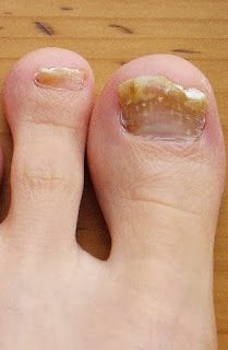 Eve's Special: Effective Home Remedies and Prevention tips for Toenail Fungus