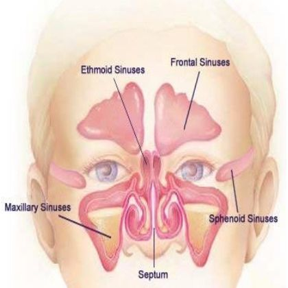 Home Remedies For Allergies and Sinus - Natural Treatments & Cure For Allergies and Sinus | Search Home Remedy