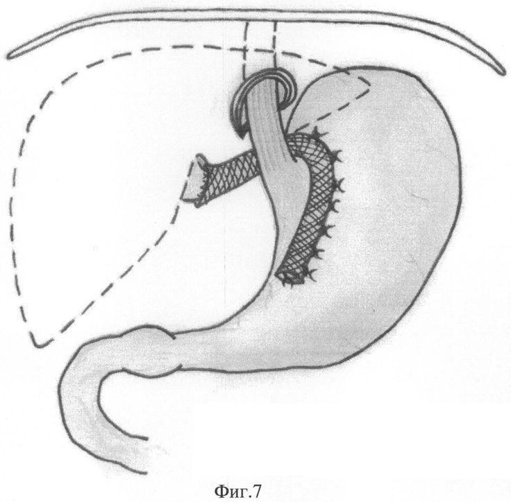 способ пластики грыжи пищеводного отверстия диафрагмы, патент № 2494690