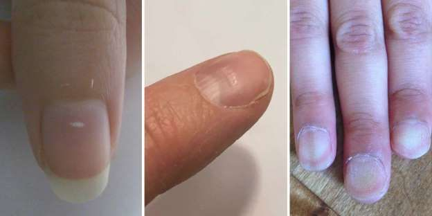 That peeling might be telling you it's time to eat better. Those horizontal ridges? Could be a stres... - Provided by Hearst Communications, Inc