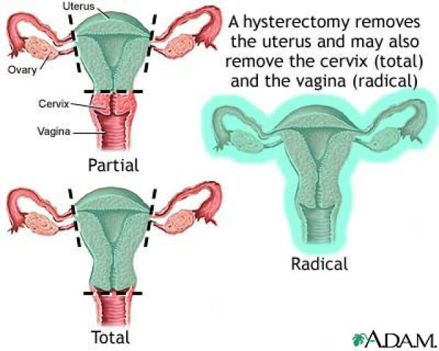 Hysterectomy For Endometriosis, Cramps and Bleeding: Hysterectomy Surgeries