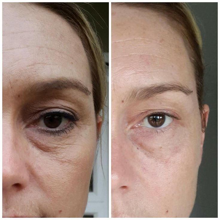 Wonderful results using Luminesce