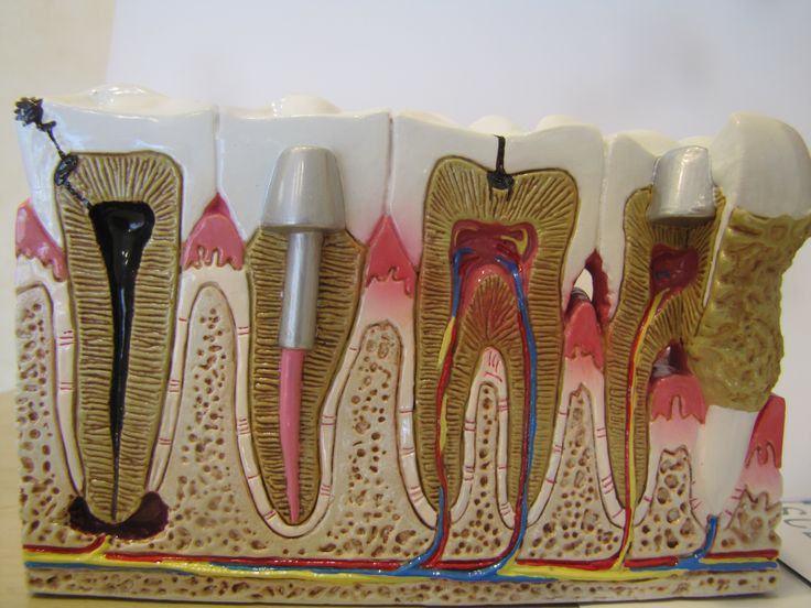 DentoForm Model Examples of Caries/cavity causing an