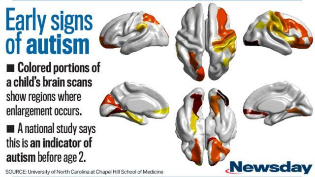 Brain scans show early signs of autism in high-risk children | Newsday