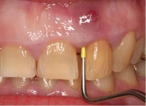 #dentalclinicspunjab #dentalsurgeryindia #dentalhospitalscanada #teethwhiteningtreatmentinjalandhar #dentaltourismyukonterritory www.drguptasdentalcareindia.com Cont:91-9023444802