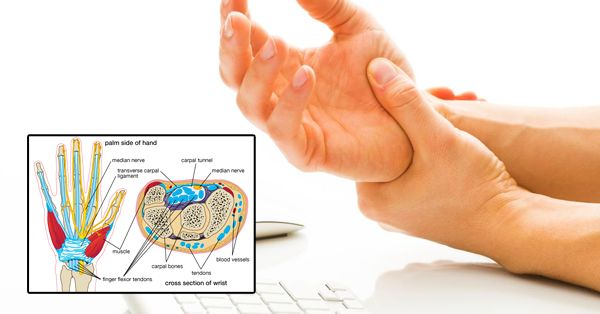 Do not Ignore If You Feel Numbness in Your Fingers or Pain in Your Wrist! - Central Readers