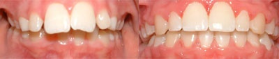 Correction of deep overbite and flared anterior teeth. Treatment-20 Months