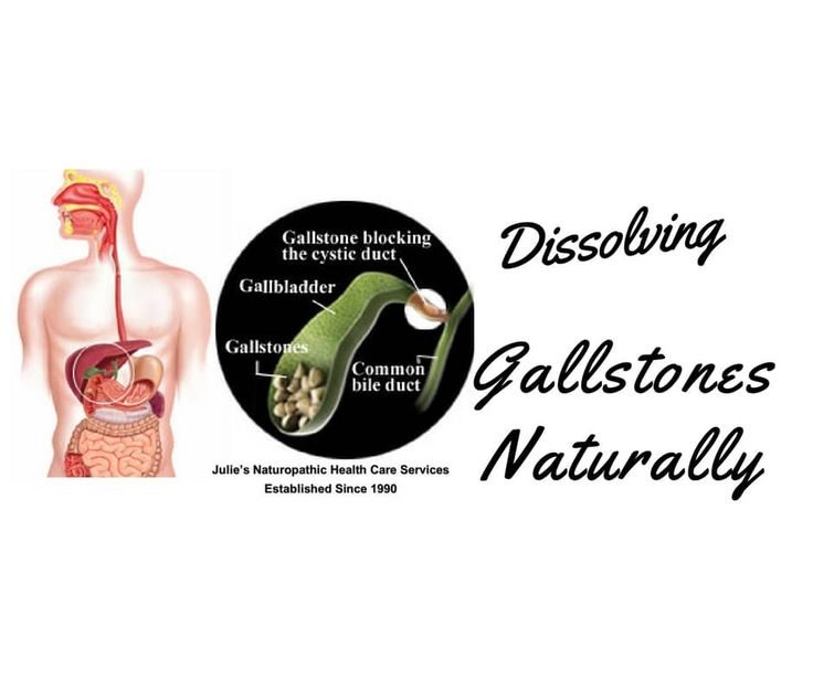 https://juliedoherty.net/dissolving-gallstones-naturally/#