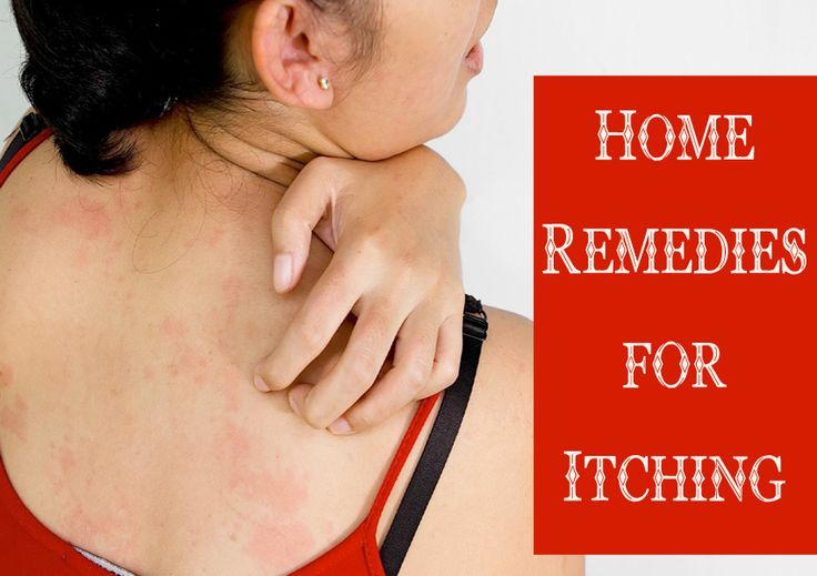 Home Remedies for Itching