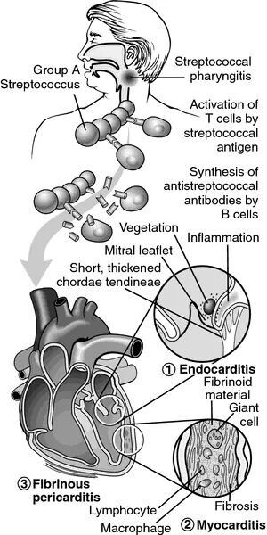 Cause of infective Endocarditis