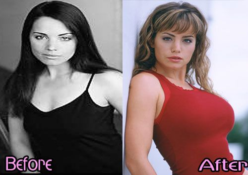 E Breast Implants Before And After Erica Durance Breast I...