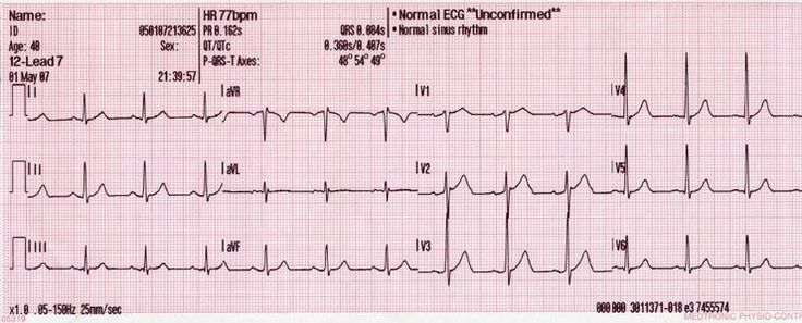 Image result for normal 12 lead ecg strip