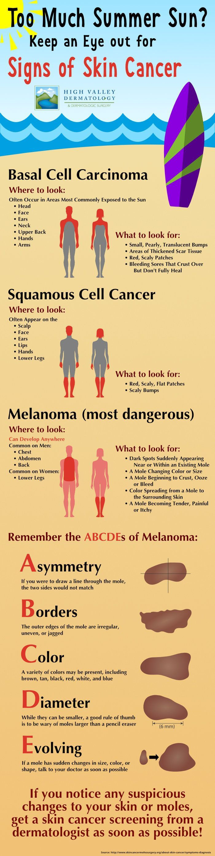 Signs of Skin Cancer / Skin Cancer Symptoms — High Valley Dermatology Infographic:
