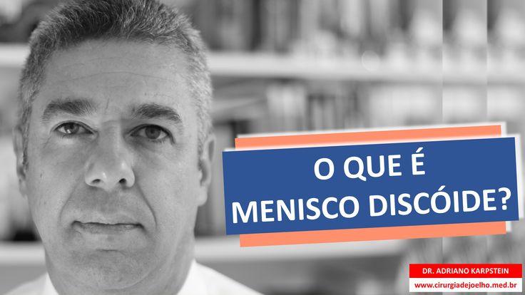 www.cirurgiadejoelho.med.br / O DR. ADRIANO KARPSTEIN, médico ortopedista especialista em Cirurgia de Joelho e Medicina Esportiva, explica O QUE É MENISCO DISCÓIDE. / #joelho #cirurgiadejoelho
