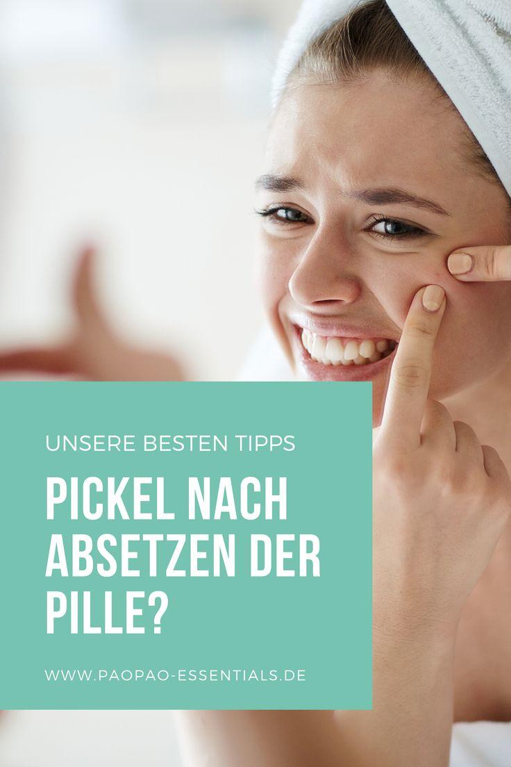 Pickel nach Absetzen der Pille - mit diesen 4 Tipps kannst