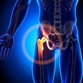 """Psoas Muskel stärken – 5 Übungen, mit denen Du dem """"wahren"""" Grund für Deine Rückenschmerzen das Handwerk legst"""