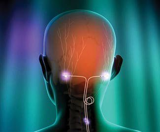 Sumatriptan and other migraine medication as well as alternative procedures such as Botox and SPG can help reduce migraine pain intensity and frequency