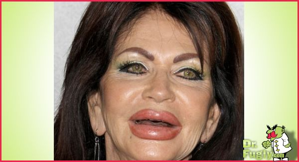 Supposedly Jackie Stallone And Her New Lips