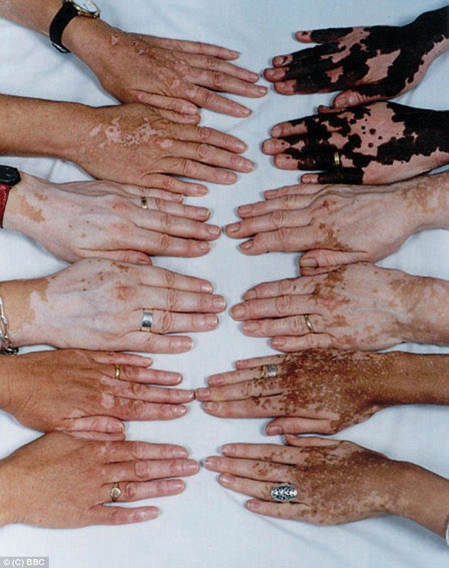 i couldnt find the photo, however, Ben has vitiligo , i wanted something to represent it