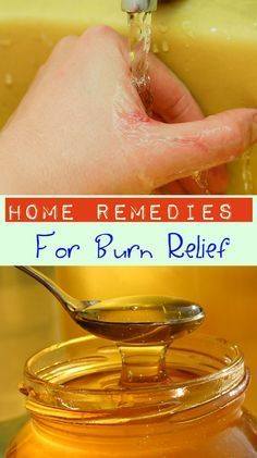 Home Remedies for Burn Relief | (I don't recommend baking soda -- too alkaline for skin, which is naturally acidic).
