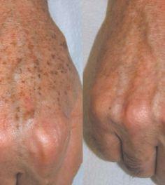 Így tüntessük el bőrünk barna elváltozásait