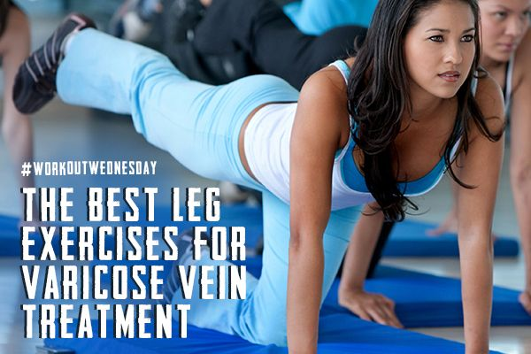 To help relieve the pain and discomfort from varicose veins, we've compiled a list of leg exercises to make working out enjoyable again.