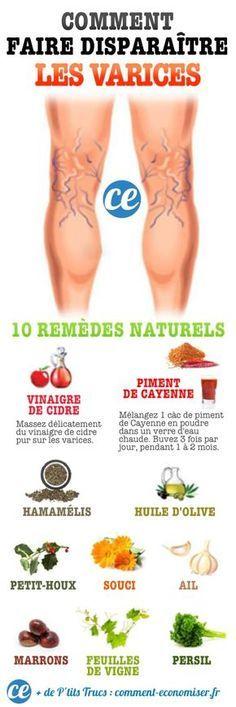10 Remèdes Miracle Pour Faire Disparaître les Varices Naturellement.