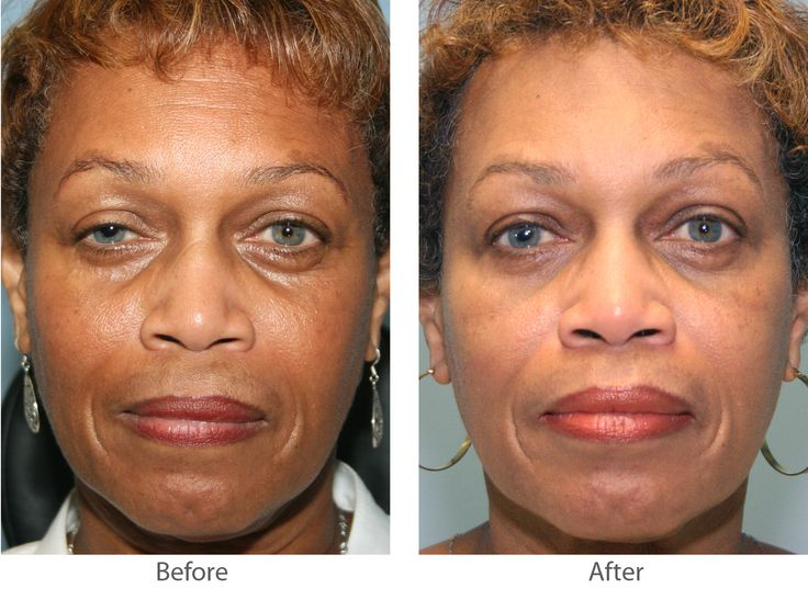 Summary -> Detoxing Cleanses Pro Bono Plastic Surgery After