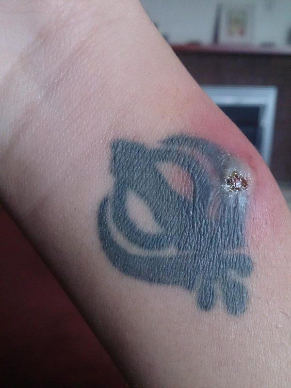 19 best tattoos images on pinterest ink tattoos for Badly infected tattoo