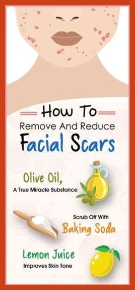 Acne Scar Removal - How to Remove Keloid Scar - It is Possible -- Learn more by visiting the image link. #beauty