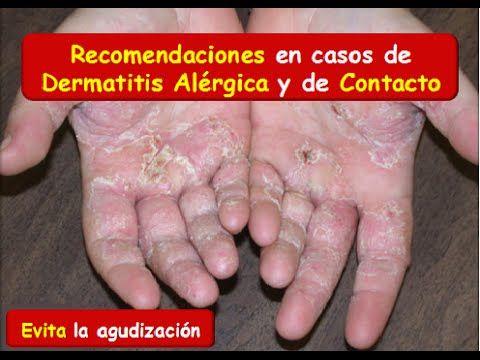 DERMATITIS: Síntomas y recomendaciones en casos de Dermatitis atopica y ...